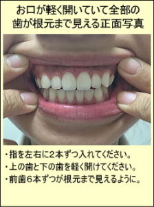 お口が軽く開いていて全部の歯が根元まで見える正面写真