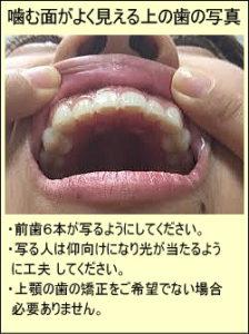 噛む面がよく見える上の歯の写真