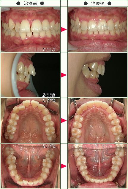 前歯のすきっ歯矯正症例(A,Y様 28歳 女性)