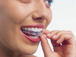 インビザライン・マウスピース矯正 出っ歯矯正症例