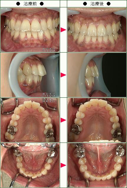 出っ歯矯正症例(A.I様 54歳 女性)