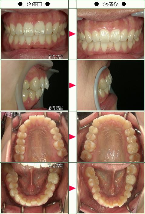 出っ歯矯正症例(あやみ様 25歳 女性)