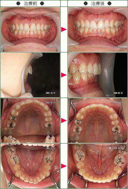 出っ歯矯正症例(ハットリ様 29歳 女性)