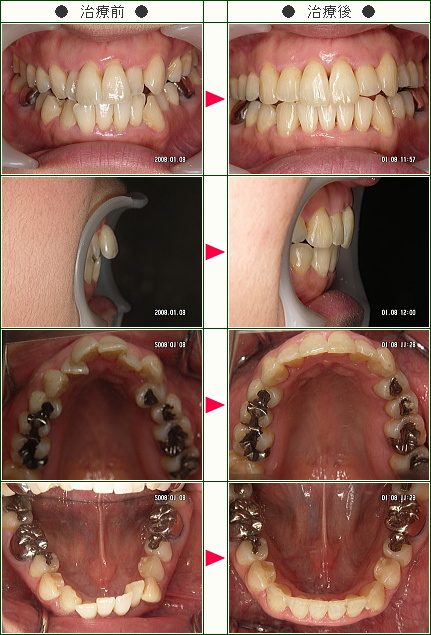 出っ歯矯正症例(松井様 40歳 女性)