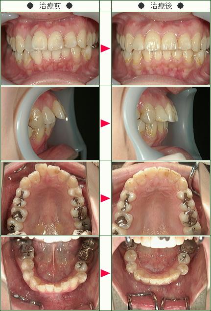 出っ歯矯正症例(坂本様 30歳 女性)