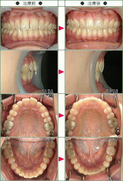 出っ歯矯正症例(T.M様 43歳 女性)