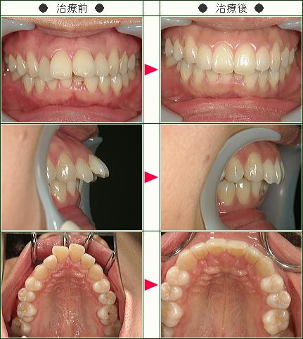 出っ歯矯正症例(29歳 女性)