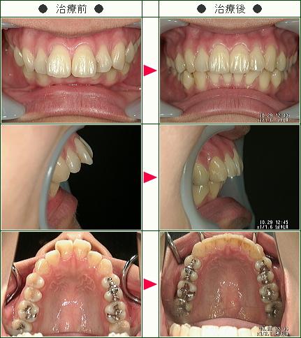 出っ歯矯正症例(A・S様 27歳 女性)