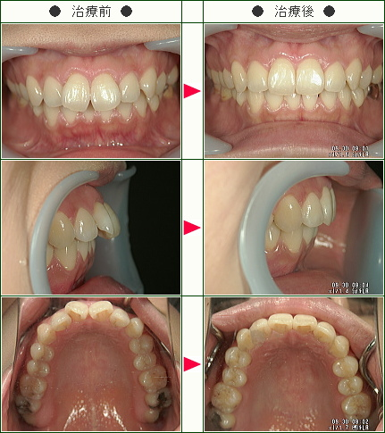出っ歯矯正症例(E様 40歳 女性)