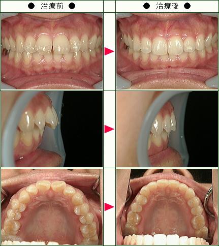 出っ歯矯正症例(後藤様 46歳 女性)