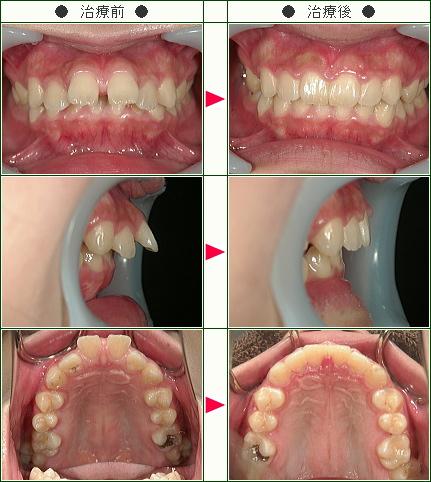 出っ歯矯正症例(K様 20歳 女性)