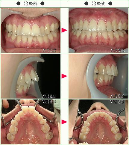 出っ歯矯正症例(金原様 26歳 女性)