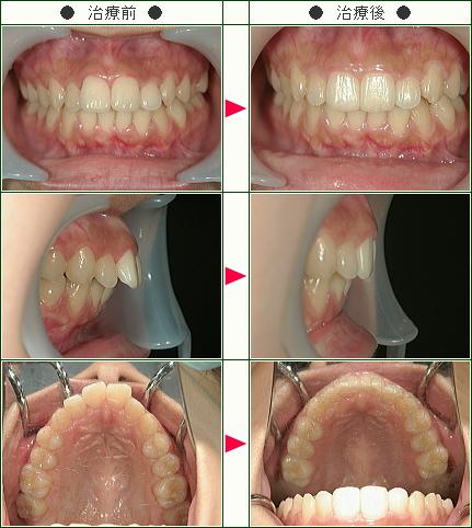 出っ歯矯正症例(M様 26歳 女性)