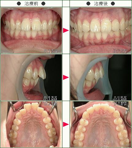 出っ歯矯正症例(M.I様 16歳 女性)