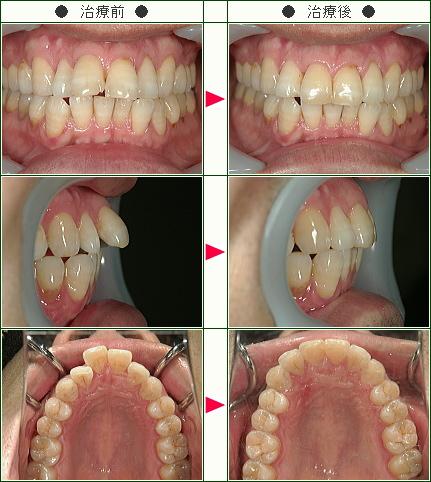 出っ歯矯正症例(M.I様 43歳 男性)