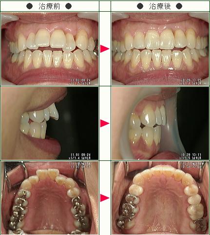 出っ歯矯正症例(みちにゃん様 53歳 女性)