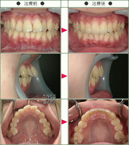 出っ歯矯正症例(M.K様 19歳 女性)