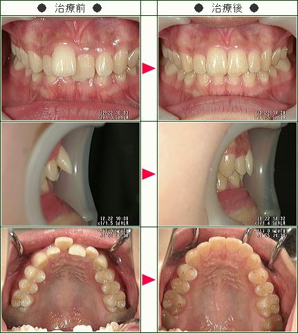 出っ歯矯正症例(moe様 19歳 女性)