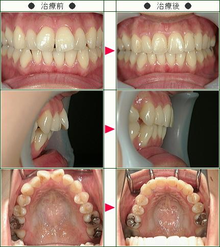 出っ歯矯正症例(M.T様 30歳 女性)