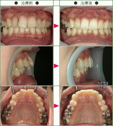 出っ歯矯正症例(M.T様 32歳 女性)
