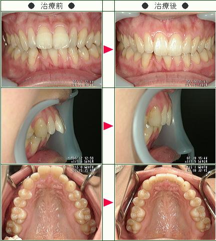 出っ歯矯正症例(ねこねこねこ様 28歳 女性)