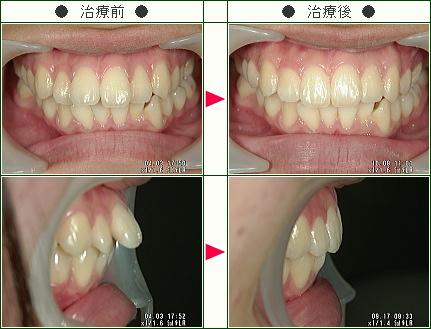 出っ歯矯正症例(S様 17歳 女性)