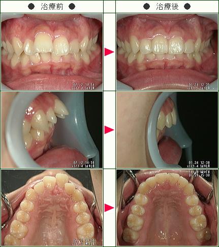 出っ歯矯正症例(S・K様 24歳 女性)