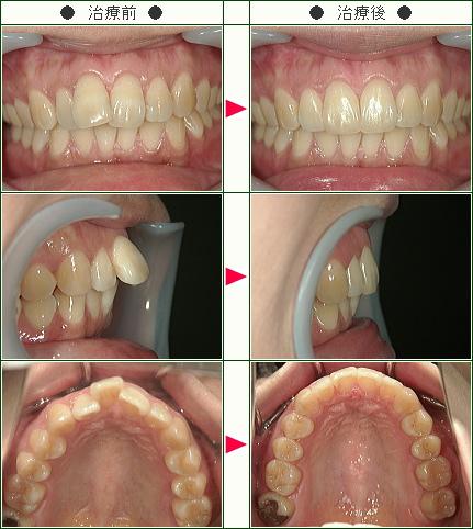 出っ歯矯正症例(高井様 31歳 女性)