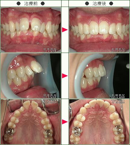 出っ歯矯正症例(竹村様 19歳 男性)
