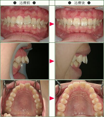 出っ歯矯正症例(手塚様 18歳 女性)
