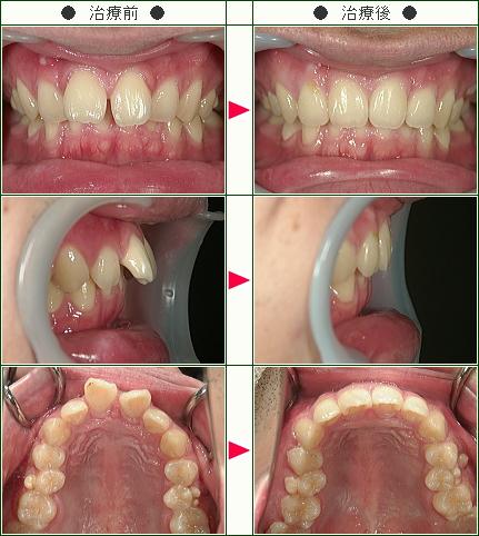 出っ歯矯正症例(戸見山様 24歳 男性)
