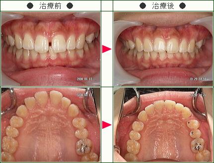 前歯のすきっ歯矯正症例(五十嵐様 21歳 女性)