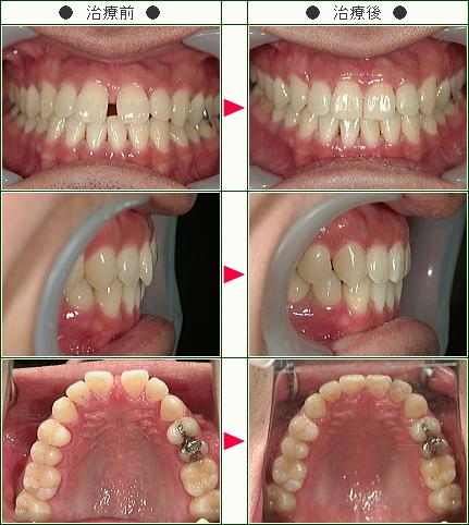 前歯のすきっ歯矯正症例(J.T様 30歳 男性)
