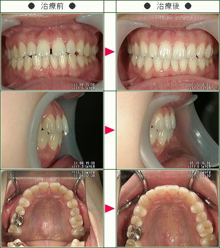 前歯のすきっ歯矯正症例(マスダ様 26歳 女性)