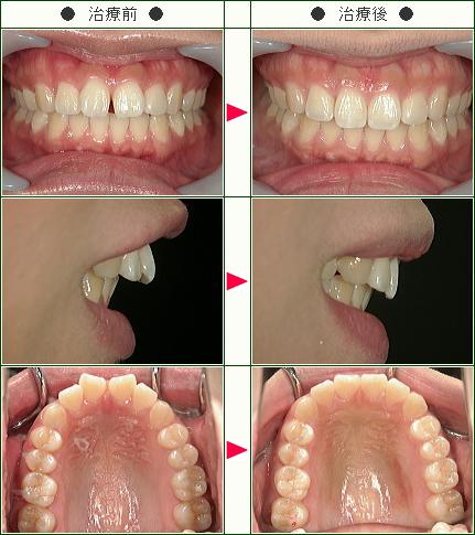 前歯のすきっ歯矯正症例(M.Y様 27歳 女性)