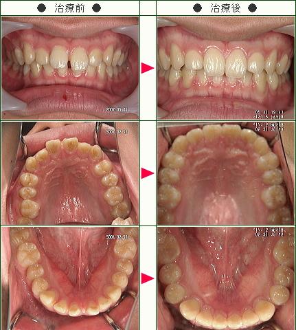 前歯のすきっ歯矯正症例(志賀様 18歳 男性)