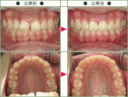 前歯のすきっ歯矯正症例(鈴木様 20歳 女性)
