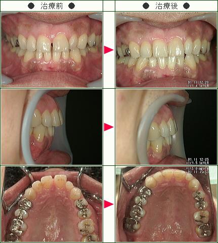 前歯のすきっ歯矯正症例(T.N様 35歳 男性)