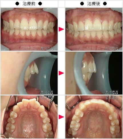 マウスピース矯正-出っ歯矯正症例(文様 20歳 女性)