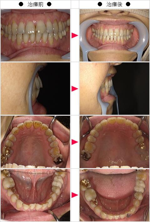 マウスピース矯正-出っ歯矯正症例(Celica T様 56歳 女性)