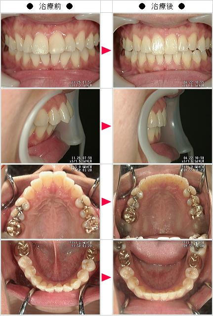マウスピース矯正-出っ歯矯正症例(かおり様 29歳 女性)