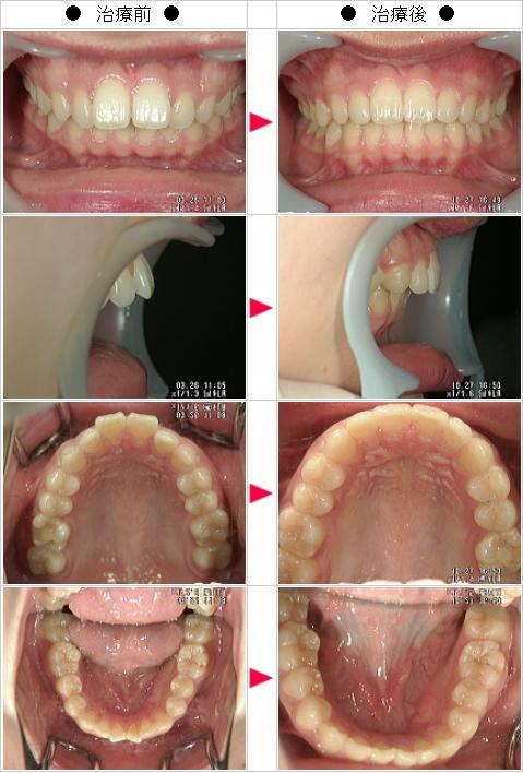 マウスピース矯正-出っ歯矯正症例(M.T様 18歳 女性)