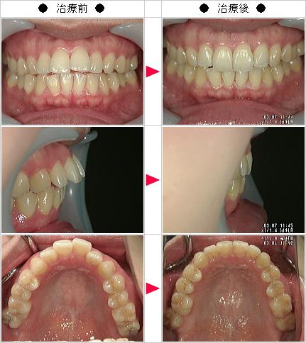 マウスピース矯正-出っ歯矯正症例(M.Y様 26歳 女性)