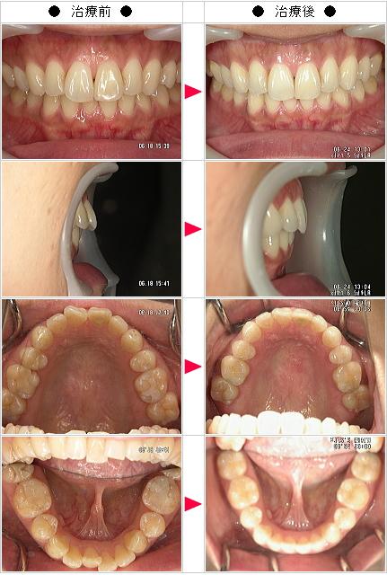 マウスピース矯正-出っ歯矯正症例(N様 35歳 女性)
