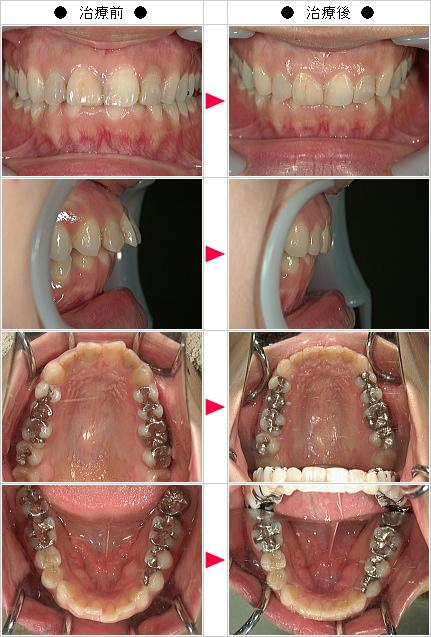 マウスピース矯正-出っ歯矯正症例(S様 25歳 女性)