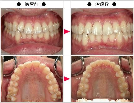 マウスピース矯正-出っ歯矯正症例(S.K様 27歳 女性)
