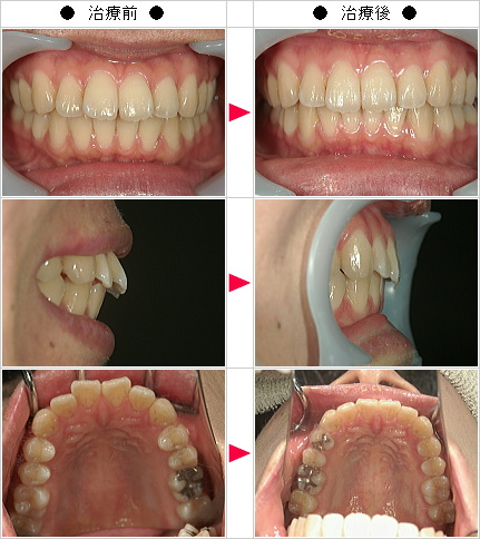 マウスピース矯正-出っ歯矯正症例(T様 29歳 女性)