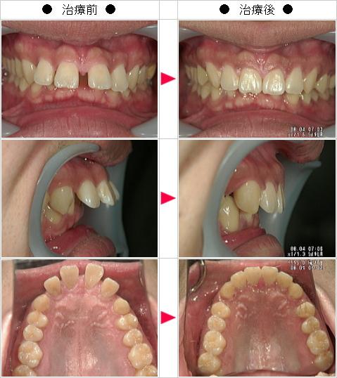 マウスピース矯正-出っ歯矯正症例(TAT様 24歳 男性)