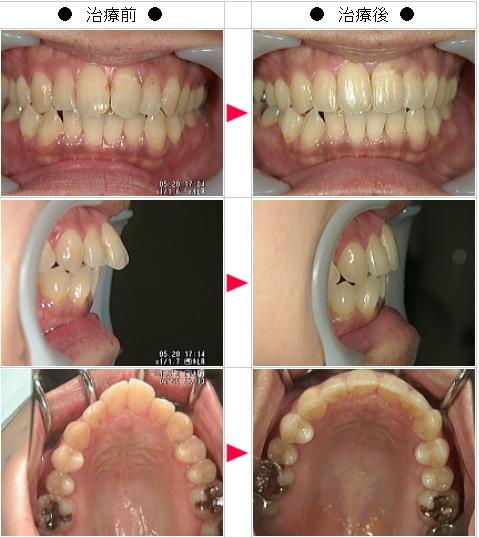 マウスピース矯正-出っ歯矯正症例(Y・T様 女性)