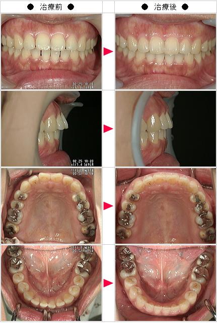 マウスピース矯正-出っ歯矯正症例(Y・W様 42歳 女性)
